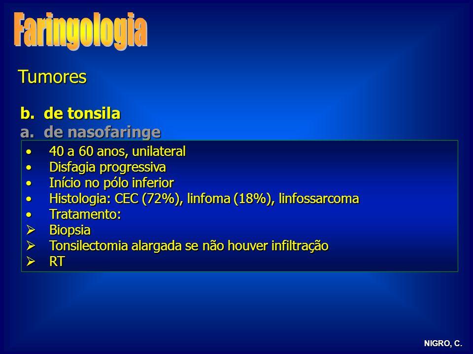 Faringologia Tumores de tonsila de nasofaringe
