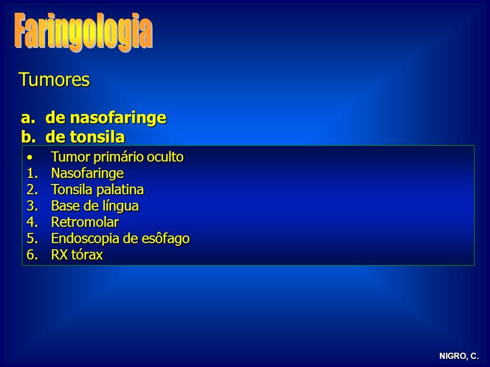 Faringologia Tumores de nasofaringe de tonsila Tumor primário oculto