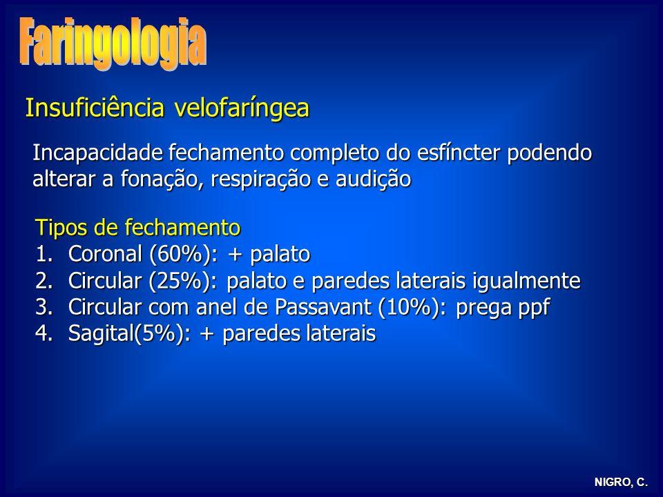 Faringologia Insuficiência velofaríngea