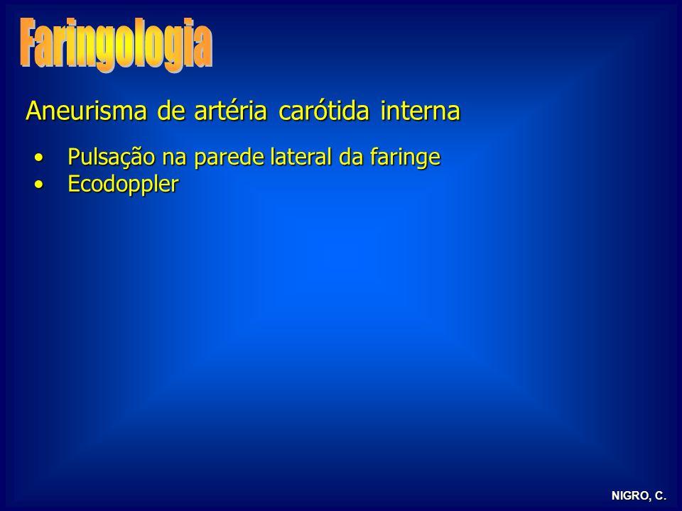 Faringologia Aneurisma de artéria carótida interna