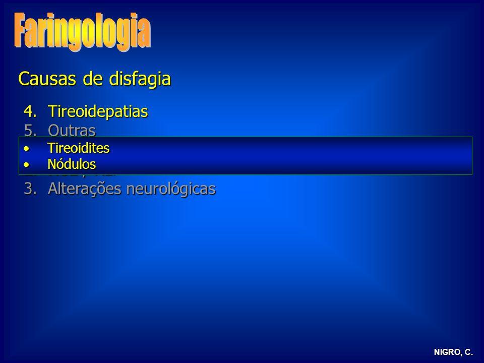 Faringologia Causas de disfagia Tireoidepatias Outras
