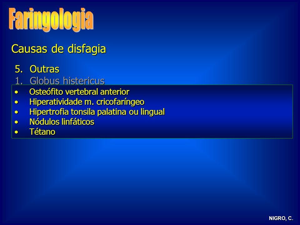 Faringologia Causas de disfagia Outras Globus histericus RGE / RLF