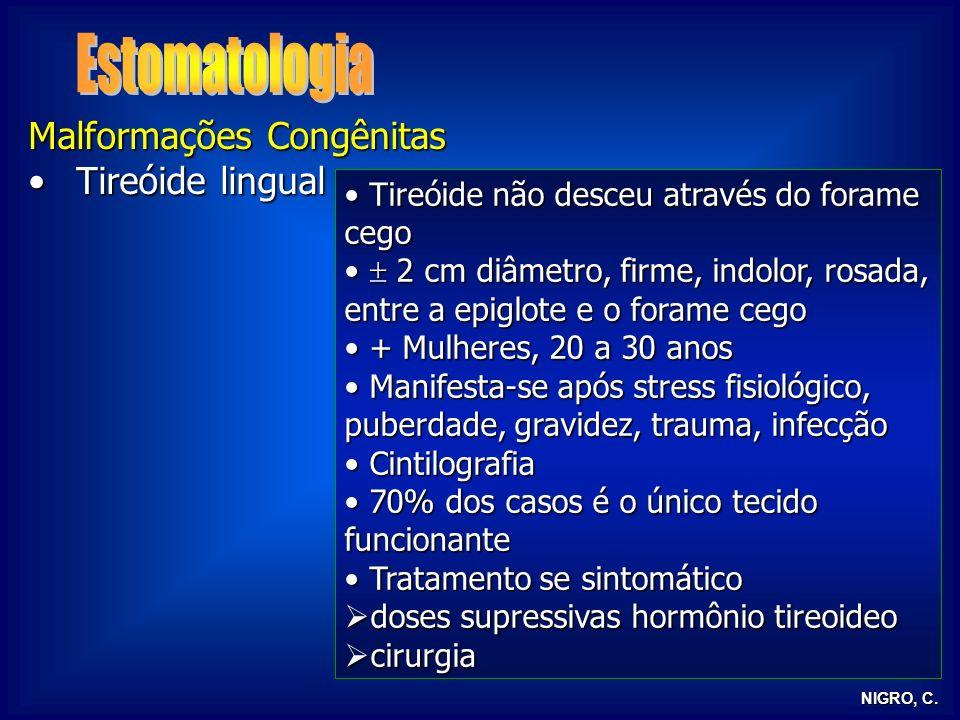 Estomatologia Malformações Congênitas Tireóide lingual