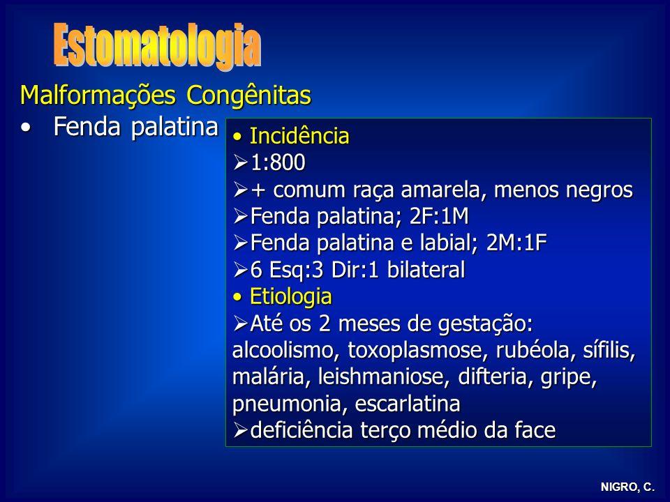 Estomatologia Malformações Congênitas Fenda palatina Incidência 1:800