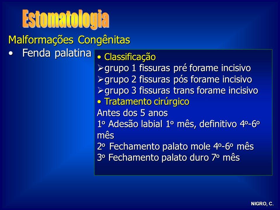 Estomatologia Malformações Congênitas Fenda palatina Classificação