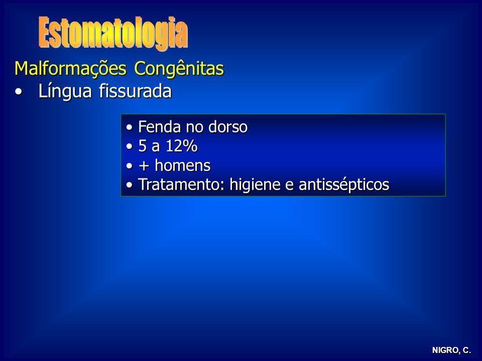 Estomatologia Malformações Congênitas Língua fissurada Fenda no dorso