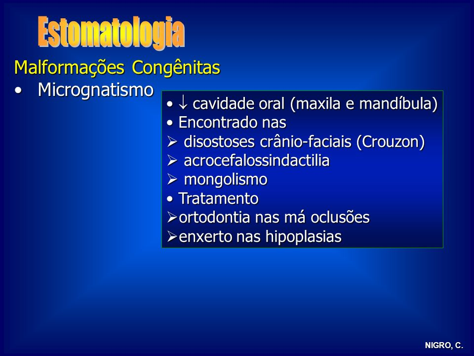 Estomatologia Malformações Congênitas Micrognatismo
