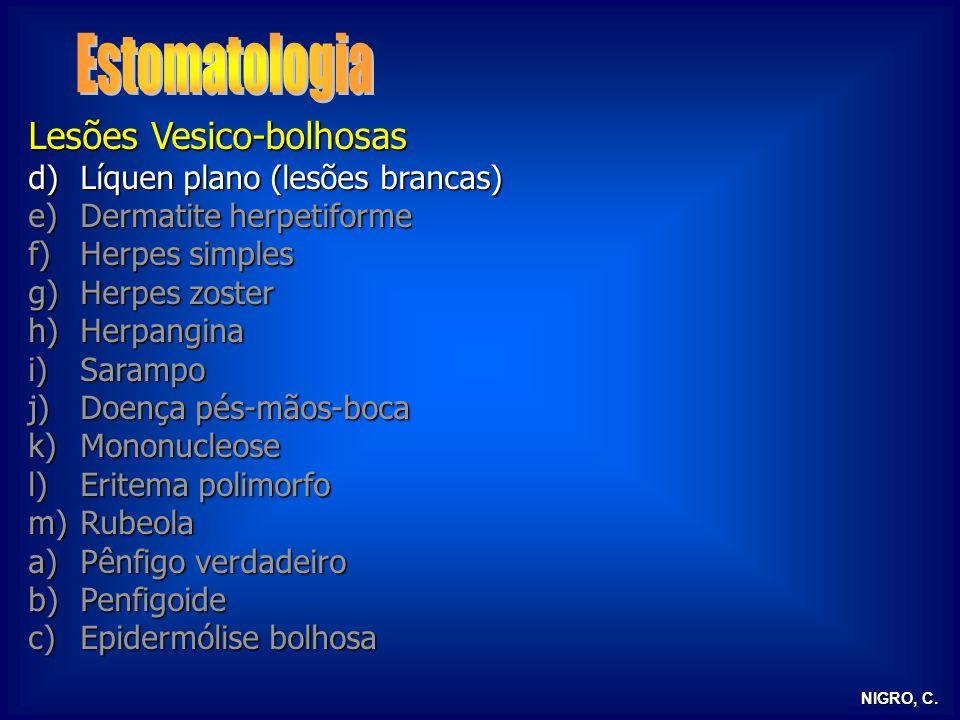 Estomatologia Lesões Vesico-bolhosas Líquen plano (lesões brancas)