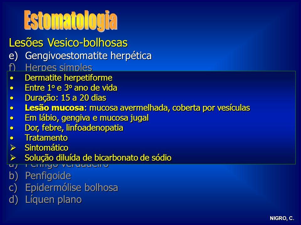 Estomatologia Lesões Vesico-bolhosas Gengivoestomatite herpética