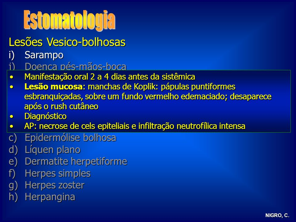 Estomatologia Lesões Vesico-bolhosas Sarampo Doença pés-mãos-boca