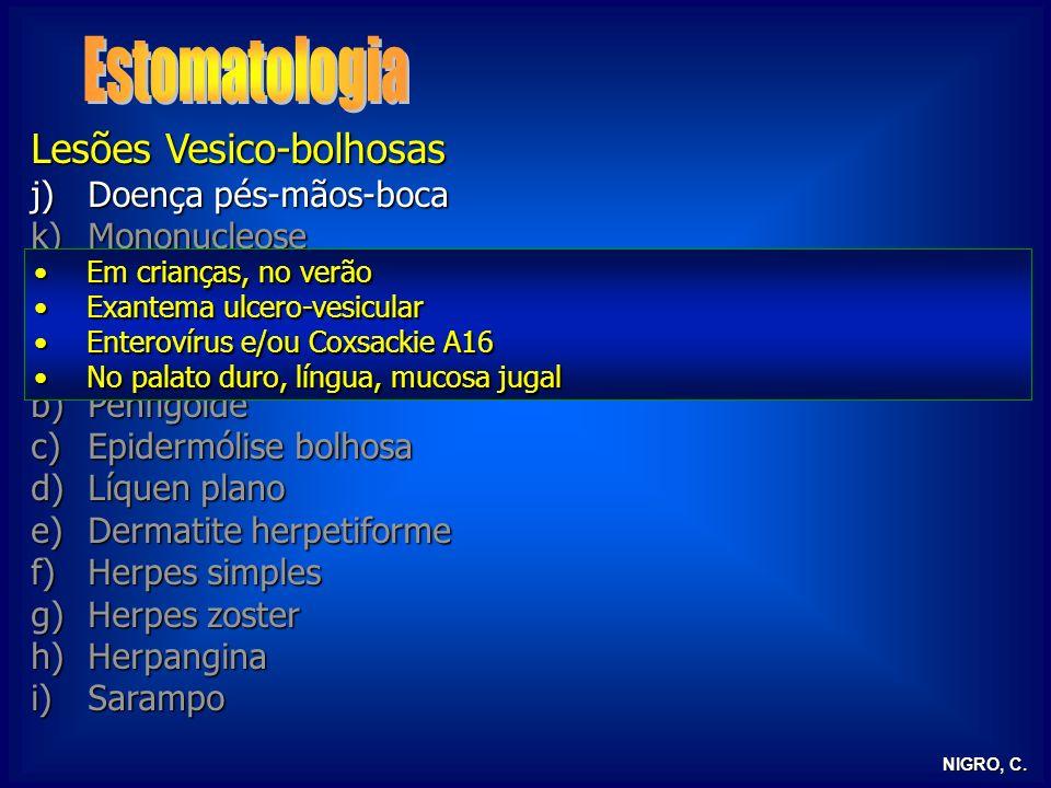 Estomatologia Lesões Vesico-bolhosas Doença pés-mãos-boca Mononucleose