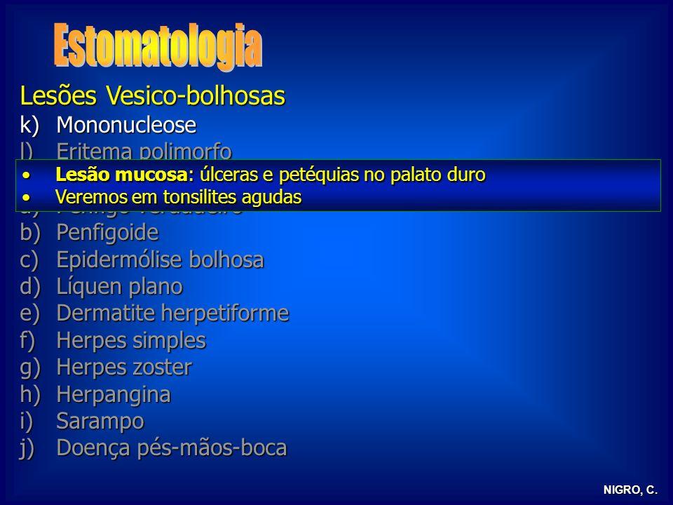 Estomatologia Lesões Vesico-bolhosas Mononucleose Eritema polimorfo