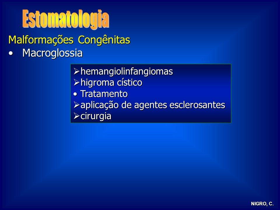 Estomatologia Malformações Congênitas Macroglossia