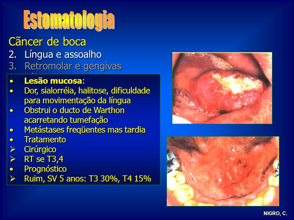 Estomatologia Cãncer de boca Língua e assoalho Retromolar e gengivas