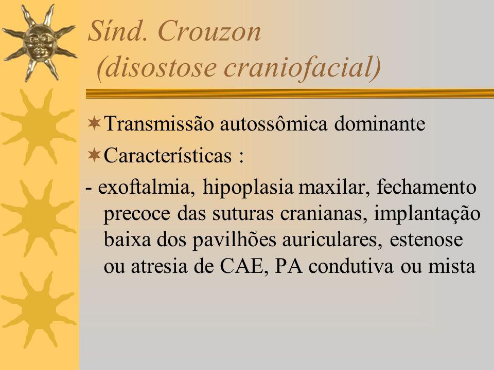 Sínd. Crouzon (disostose craniofacial)