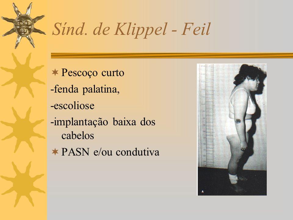 Sínd. de Klippel - Feil Pescoço curto -fenda palatina, -escoliose