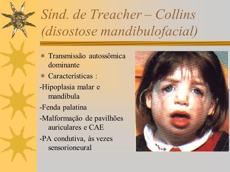 Sínd. de Treacher – Collins (disostose mandibulofacial)