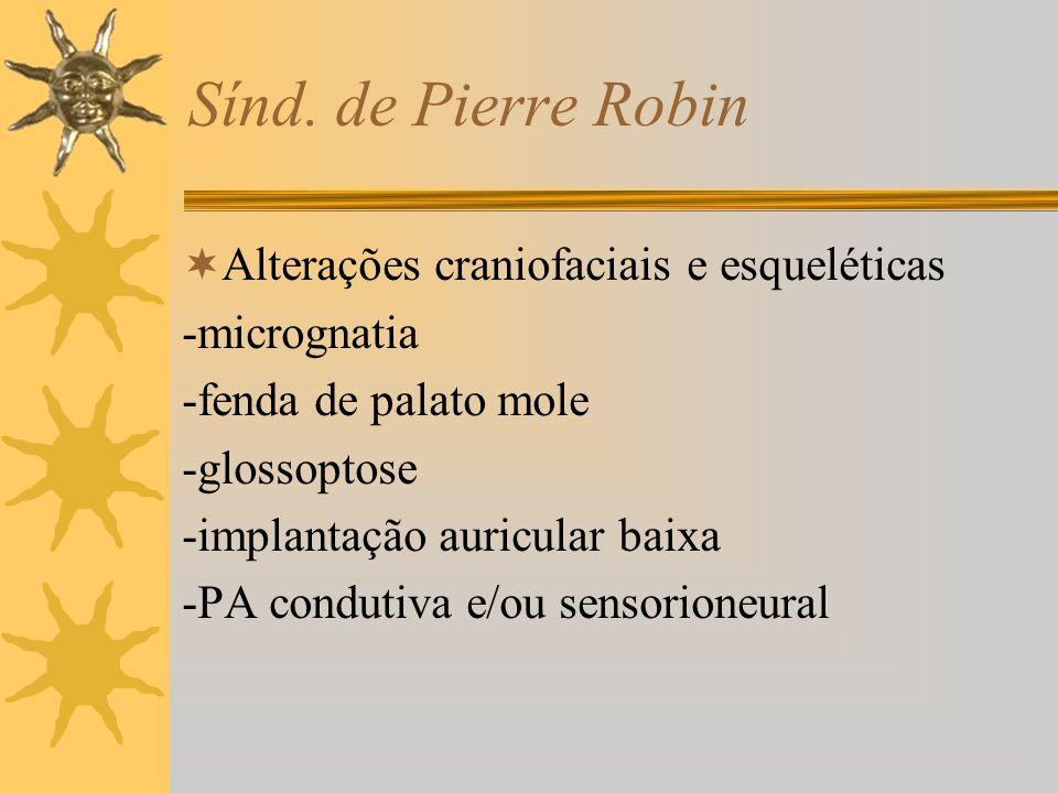 Sínd. de Pierre Robin Alterações craniofaciais e esqueléticas