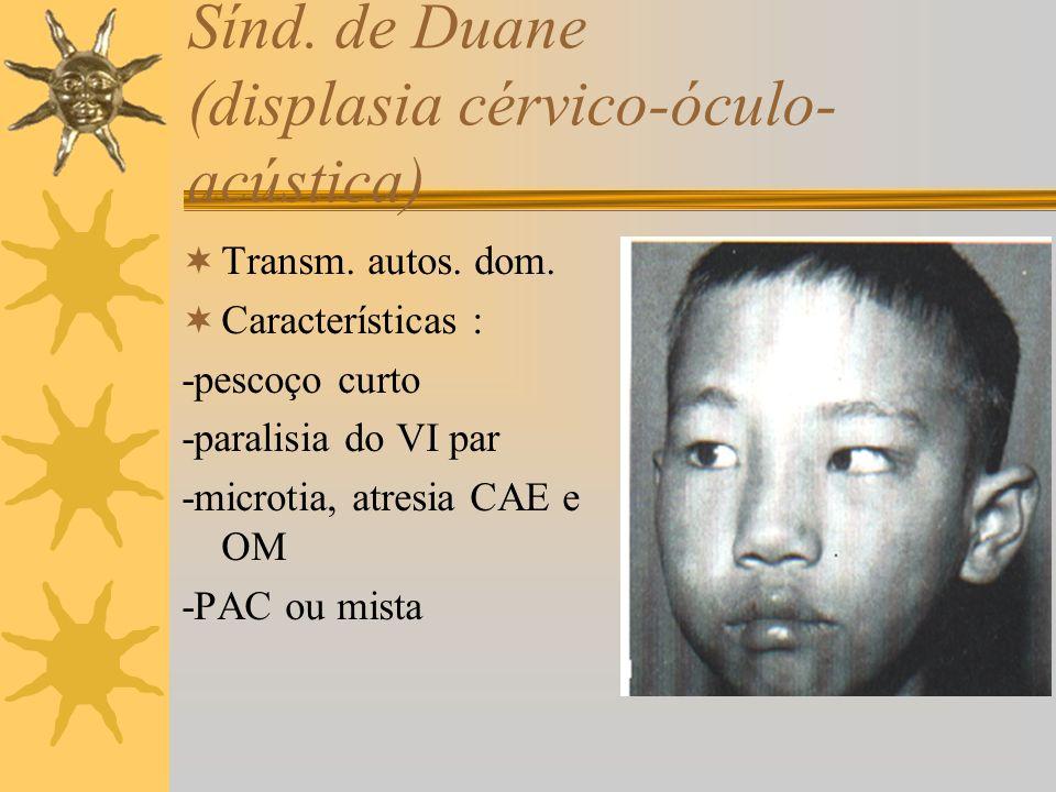 Sínd. de Duane (displasia cérvico-óculo-acústica)