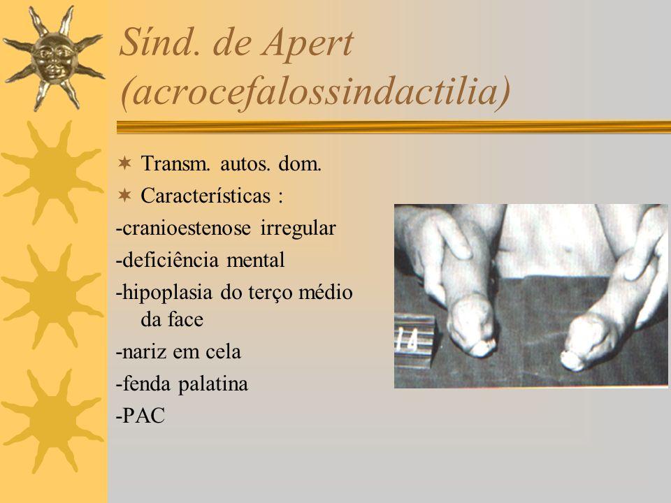 Sínd. de Apert (acrocefalossindactilia)