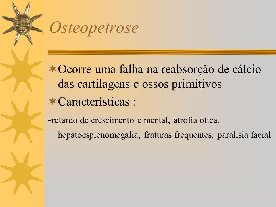 Osteopetrose Ocorre uma falha na reabsorção de cálcio das cartilagens e ossos primitivos. Características :
