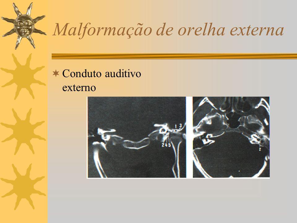 Malformação de orelha externa
