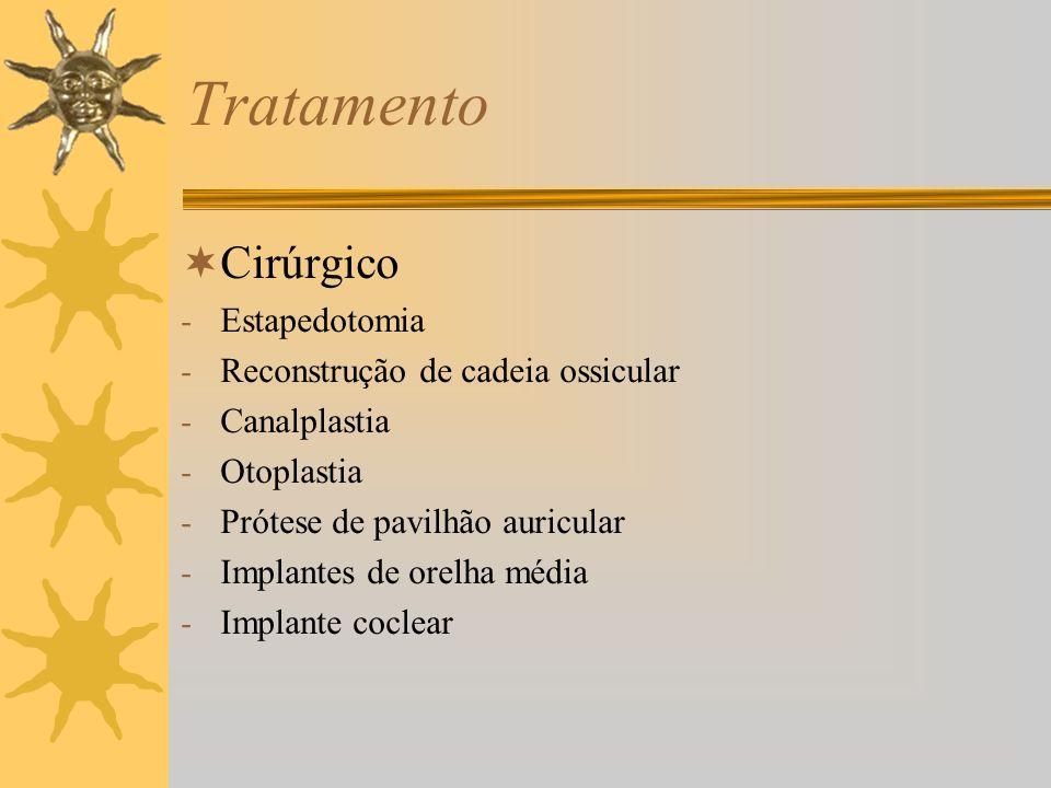 Tratamento Cirúrgico Estapedotomia Reconstrução de cadeia ossicular