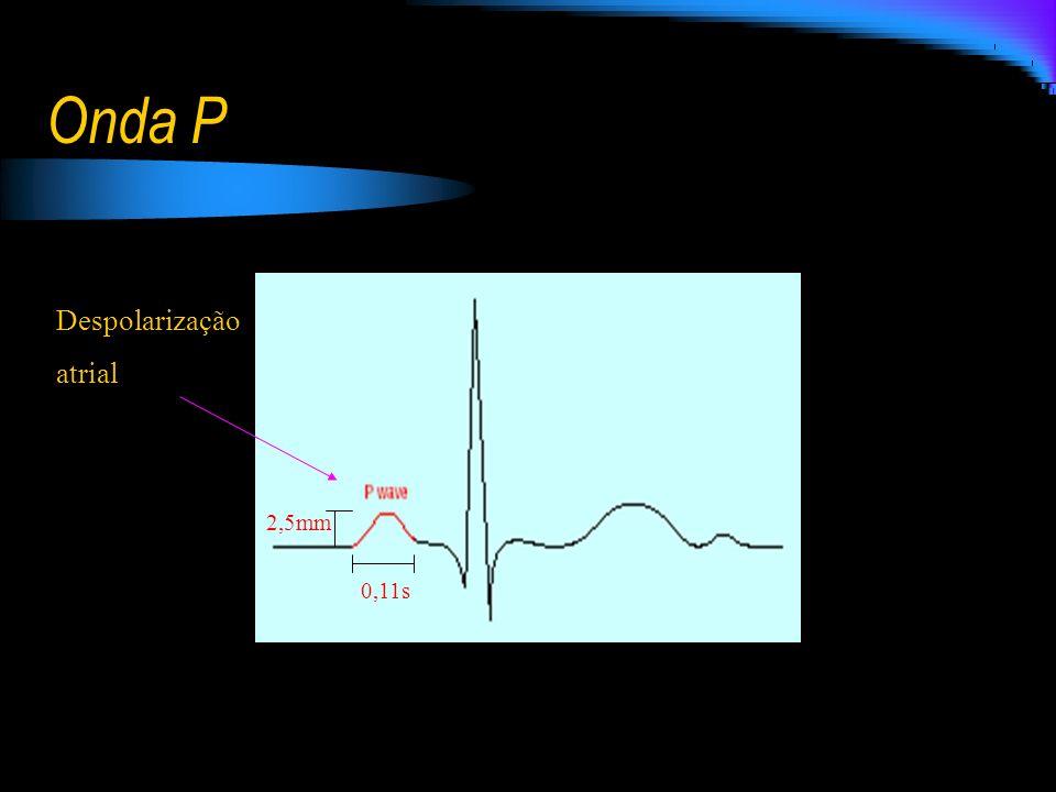 Onda P Despolarização atrial 2,5mm 0,11s