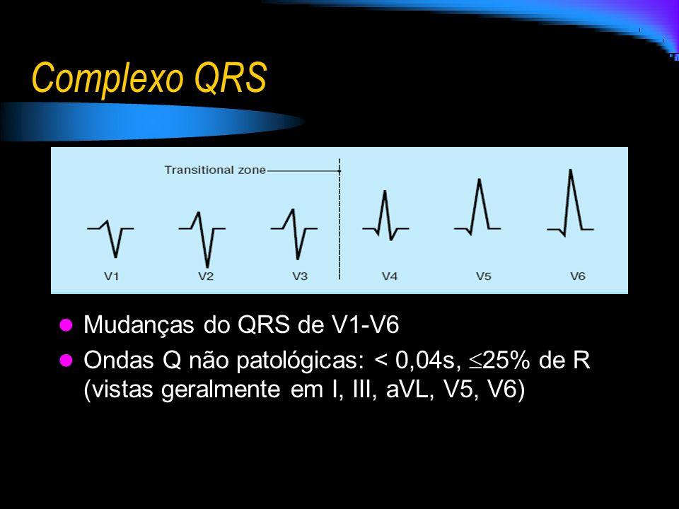 Complexo QRS Mudanças do QRS de V1-V6