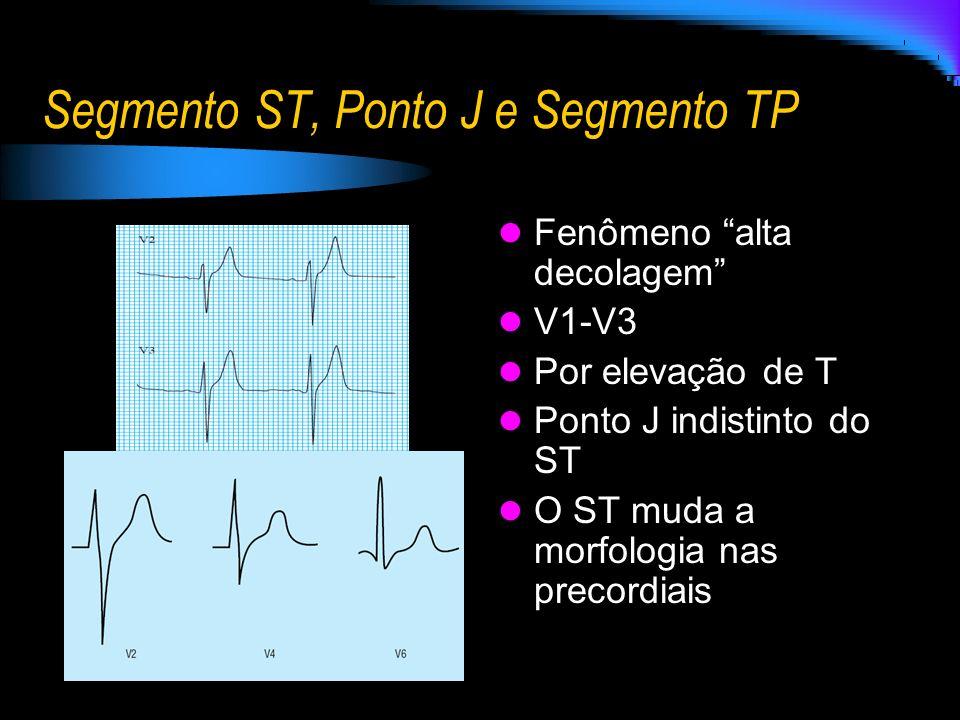 Segmento ST, Ponto J e Segmento TP