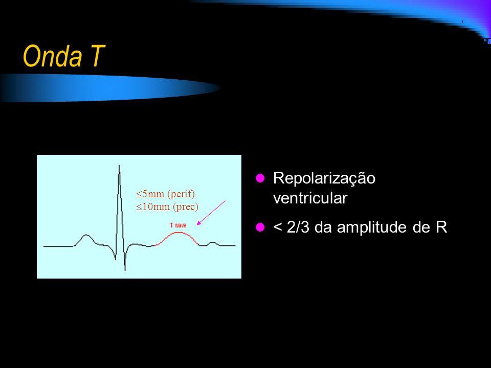 Onda T Repolarização ventricular < 2/3 da amplitude de R