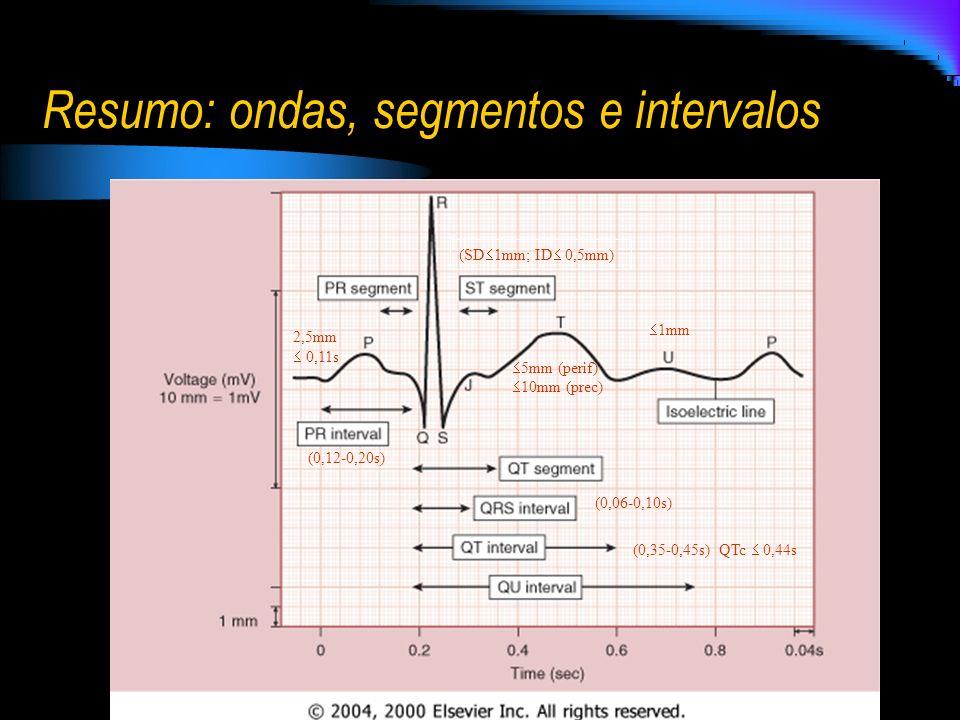 Resumo: ondas, segmentos e intervalos