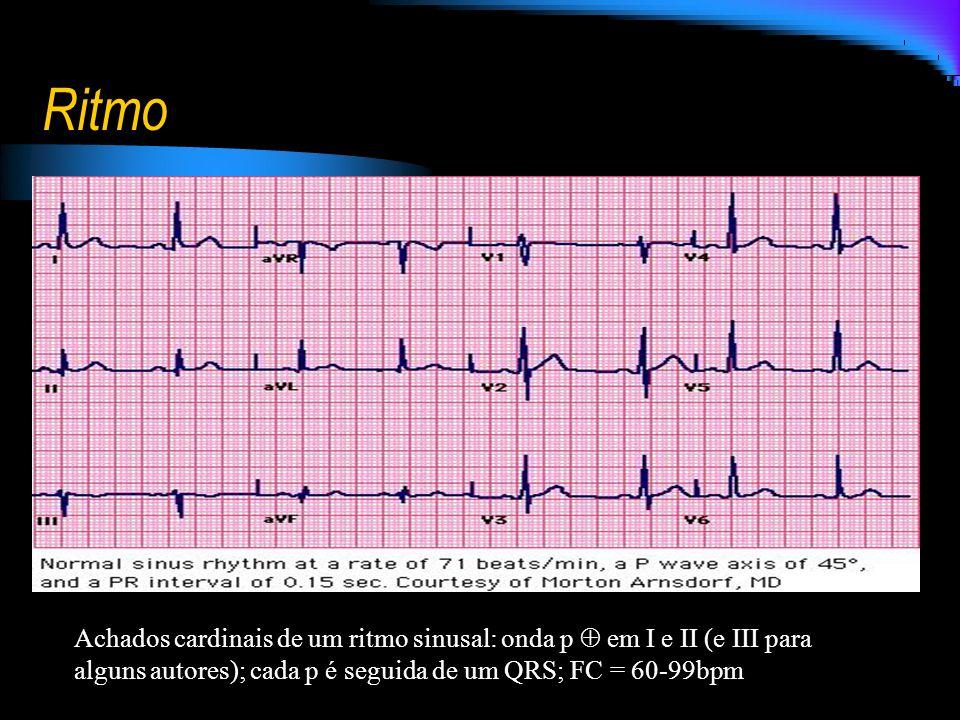 Ritmo Achados cardinais de um ritmo sinusal: onda p  em I e II (e III para alguns autores); cada p é seguida de um QRS; FC = 60-99bpm.
