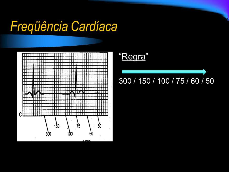 Freqüência Cardíaca Regra 300 / 150 / 100 / 75 / 60 / 50