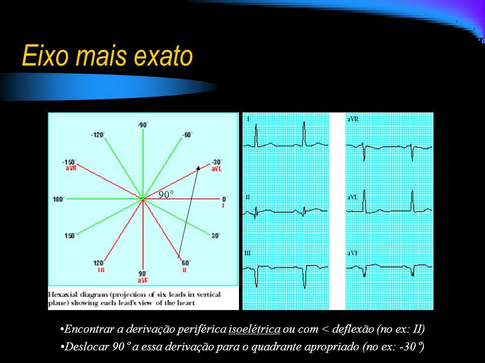 Eixo mais exato 90° Encontrar a derivação periférica isoelétrica ou com < deflexão (no ex: II)