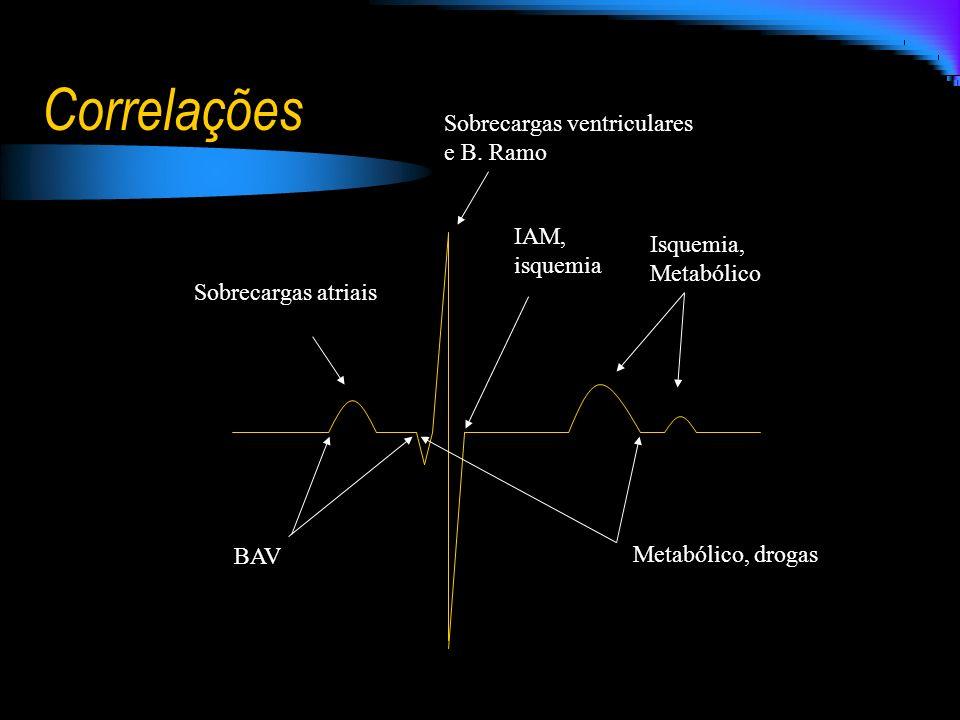 Correlações Sobrecargas ventriculares e B. Ramo IAM, isquemia