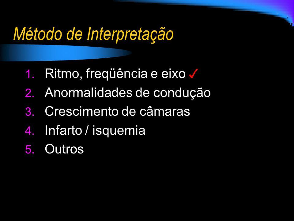 Método de Interpretação