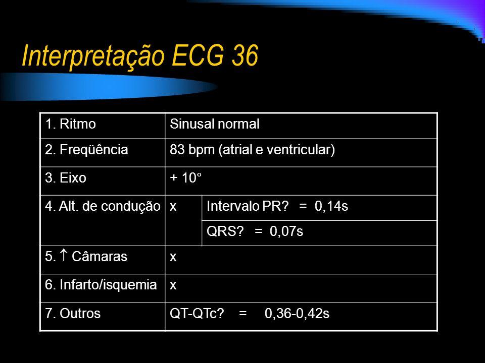 Interpretação ECG 36 1. Ritmo Sinusal normal 2. Freqüência