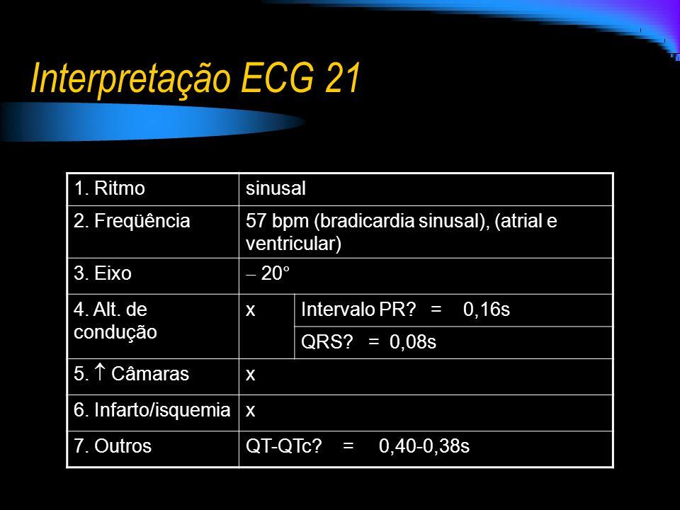 Interpretação ECG 21 1. Ritmo sinusal 2. Freqüência