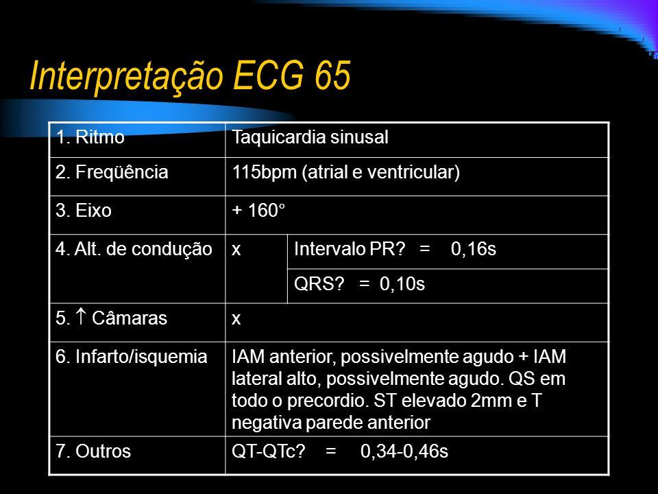 Interpretação ECG 65 1. Ritmo Taquicardia sinusal 2. Freqüência