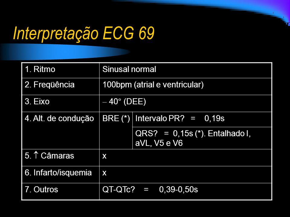 Interpretação ECG 69 1. Ritmo Sinusal normal 2. Freqüência