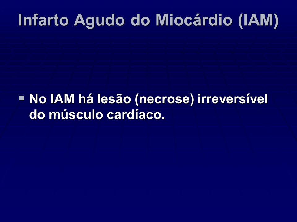 Infarto Agudo do Miocárdio (IAM)