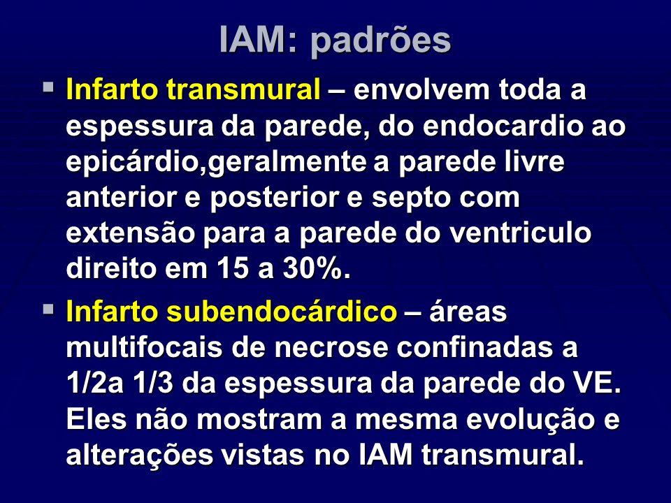 IAM: padrões