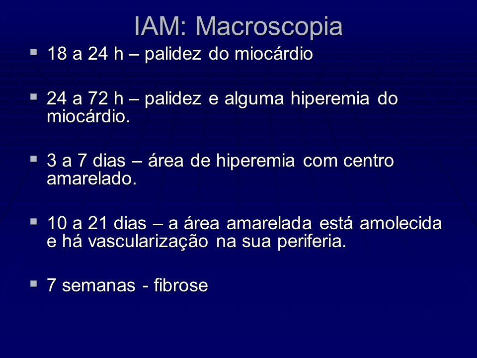 IAM: Macroscopia 18 a 24 h – palidez do miocárdio