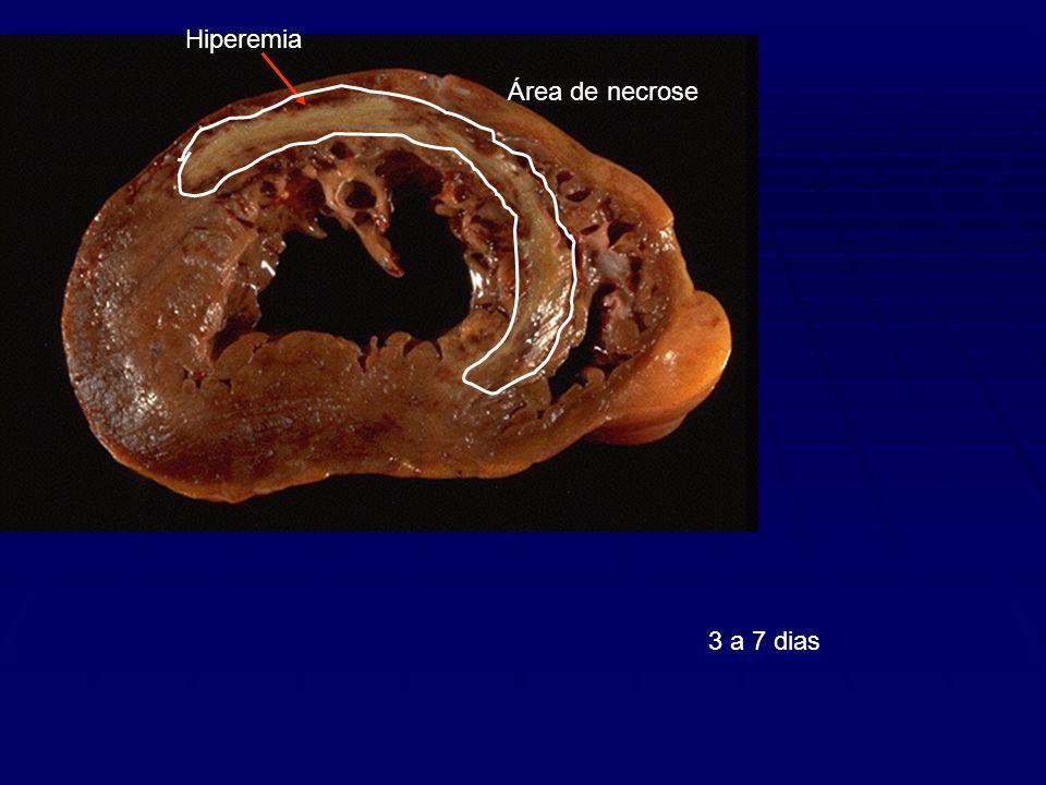 Hiperemia Área de necrose 3 a 7 dias