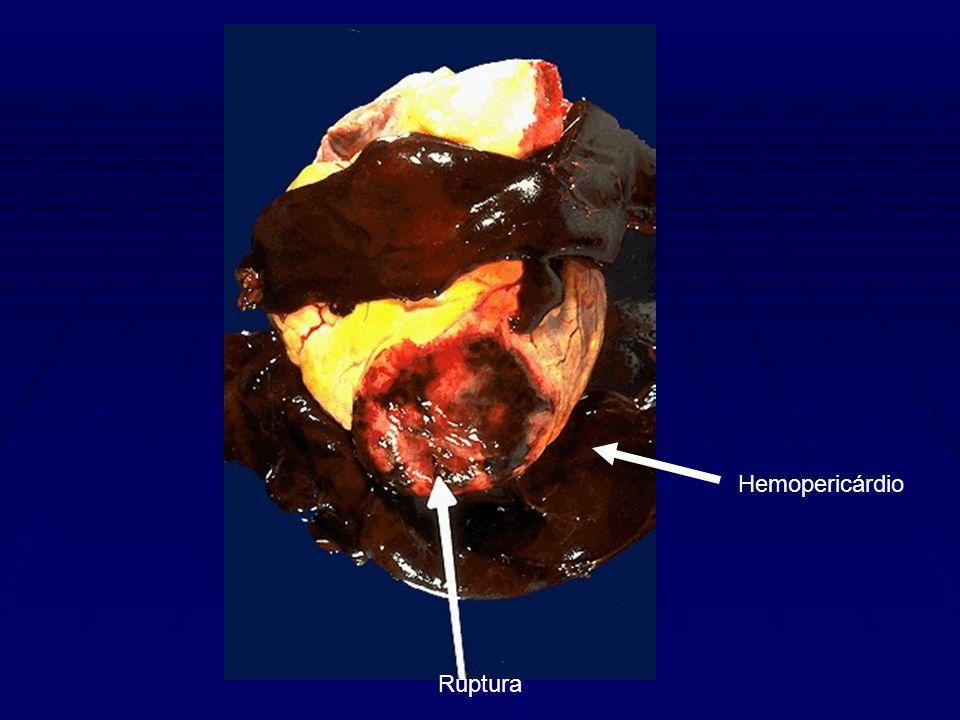Hemopericárdio Ruptura