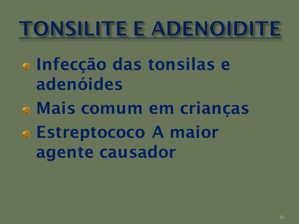 TONSILITE E ADENOIDITE