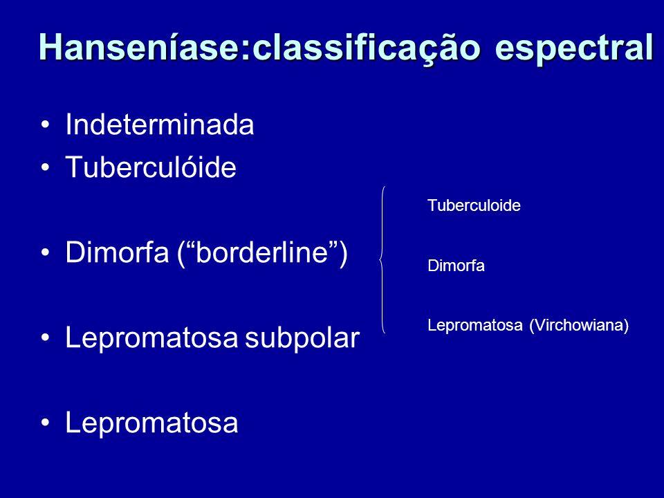 Hanseníase:classificação espectral