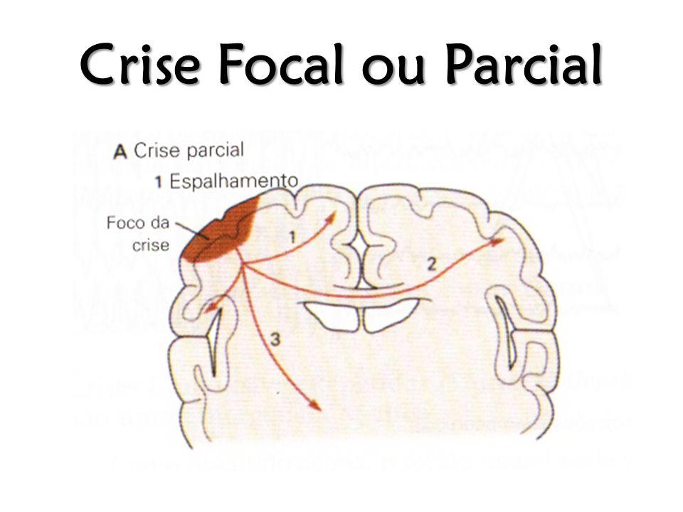Crise Focal ou Parcial