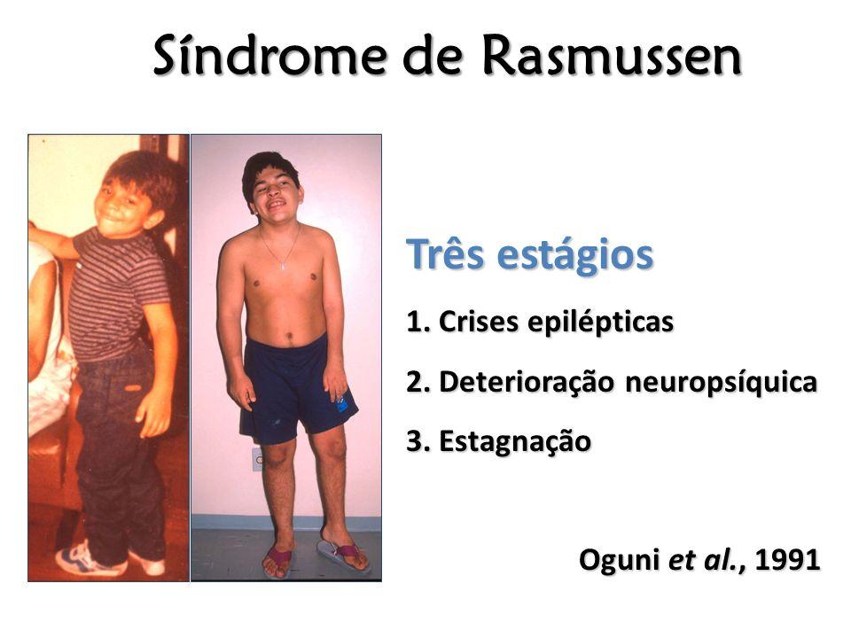 Síndrome de Rasmussen Três estágios 1. Crises epilépticas